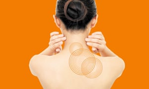 Neck fix … the VNS implant sends out weak electrical pulses.