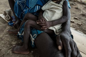 A mother sits with her malnourished child at a hospital in Tonj, Sudan