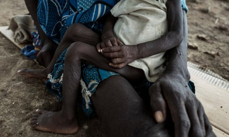 'Price of conflict is too high': hunger at crisis levels in eight countries