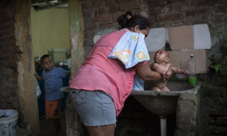 Solange Ferreira bathes her son, who has microcephaly, in a sink in their house in Bonito, Pernambuco state, Brazil.