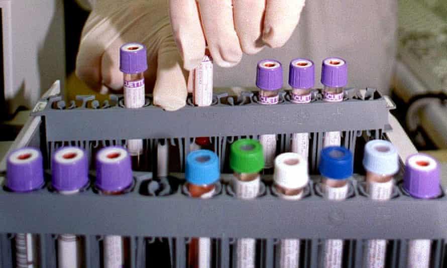 EPO blood testing