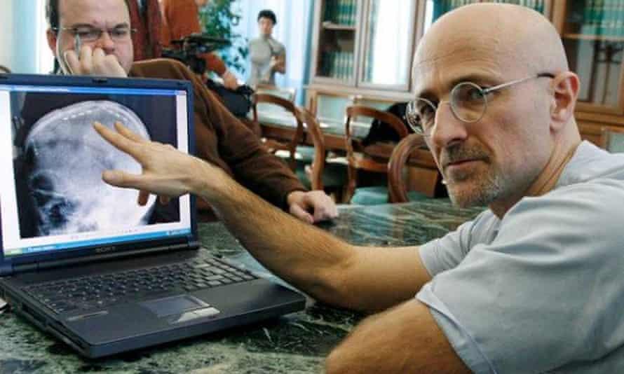 Sergio Canavero: human head transplant