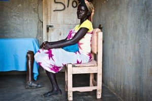 Achol had to have a leg amputated after being shot in South Sudan