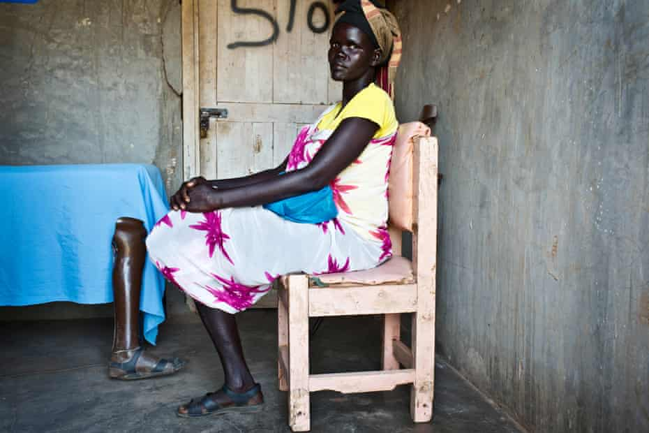 Achol, whose leg was shot and then amputated in South Sudan, waits to have her prosthetic foot replaced in Kakuma Camp for refugees, Kenya