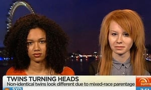 A screengrab of non-identical twins from London, UK, named Lucy and Maria Aylmer. Sunrise's TV presenter Samantha Armytage has had to apologise for comments she made on-air last month, dubbed by some viewers as racist, after she congratulated ginger-haired Lucy on getting 'her dad's fair skin,' saying 'good on her.'