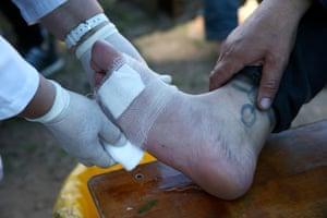 A pilgrim receives medical aid