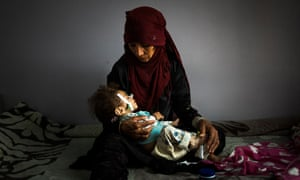 Halima Yehia, from Damar, holds her granddaughter Qasima in the malnutrition ward of the al-Sabeen hospital