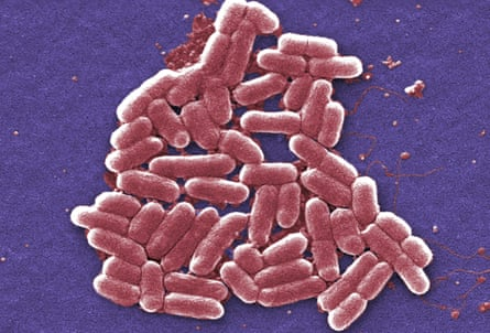 A micrograph image of the O157:H7 strain of E coli bacteria.