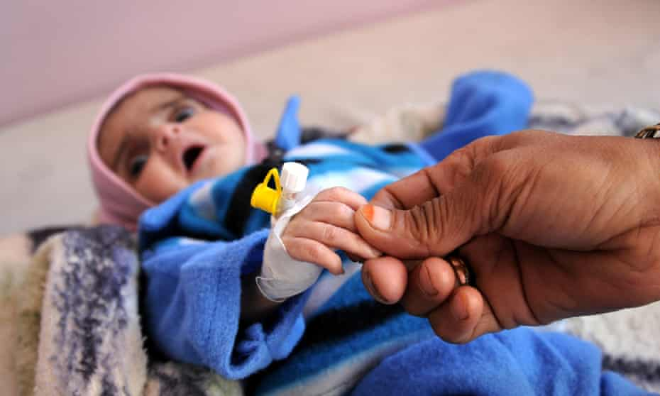 A malnourished baby receives treatment at al-Sabaeen hospital in Sana'a, Yemen