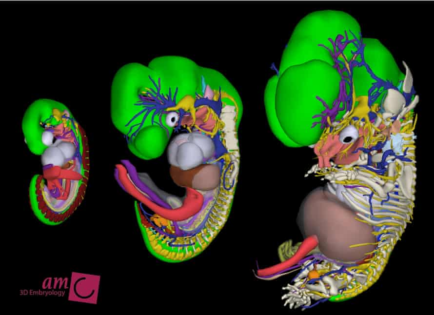 Human embryos at (from left to right) 6, 8 and 9.5 pregnancy weeks.