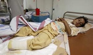Salah Falah, 7, receives treatment in a Fallujah hospital.