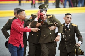 An uniformed official bleeds from the head following an incident during a speech by Venezuela's president Nicolas Maduro.