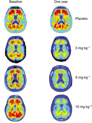 Comparison brain scans, with amyloid beta protein shown in red. The different dosages of aducanumab being tested are shown on the right.