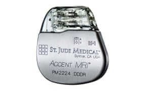 Abbott / St Jude Medical's Accent MRI pacemaker, one of the affected devices that had to be recalled