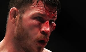 Michael Bisping is bloodied and bruised.