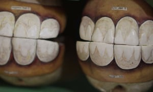 Artificial Horse Teeth To Be Celebrated At Cambridge Museum