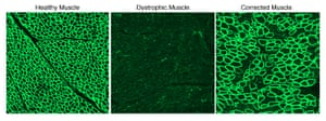 Single Cut CRISPR strategy restores the dystrophin protein. The images illustrate dystrophin (in green) in a healthy diaphragm muscle (left), absence in a canine model of Duchenne muscular dystrophy (center), and restoration of dystrophin in animals treated with CRISPR/Cas9 (right).