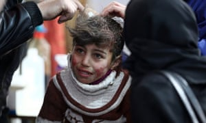 Hala, 9, receives treatment at a makeshift hospital in besieged eastern Ghouta.
