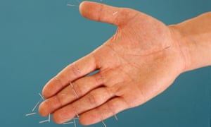 Hand with acupuncture needles in it