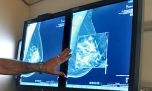 Results of mammography being analysed