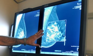 'Women of color are less likely, when they do get a mammogram, to get one at an academic medical center, which is more likely to have specialists and technology better at detecting cancer in younger women.'
