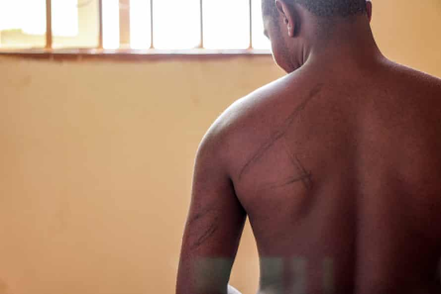 One of the young people imprisoned is scarred following torture he allegedly endured.