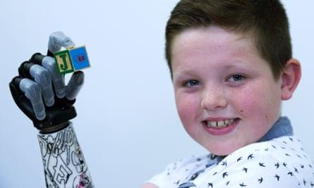 Josh Cathcart with his i-limb quantum