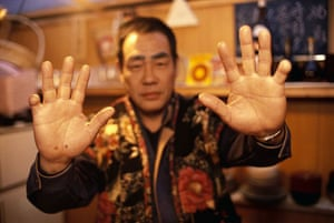 A member of the Yakuza Mafia displays his hands