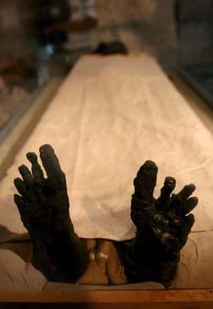The mummy's feet