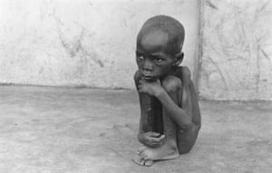 A starving Biafran child