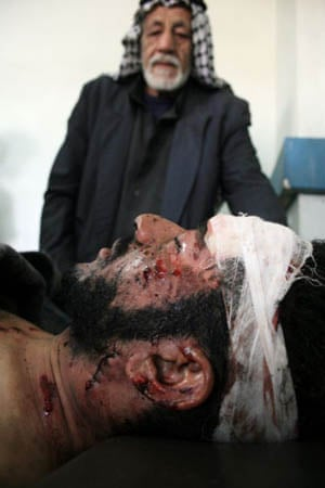 A man looks at his wounded relative at Imam Ali hospital