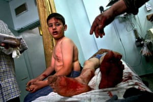 A young Palestinian boy injured by an Israeli air strike