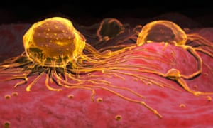 A graphic of how microscopic breast cancer cells would look.