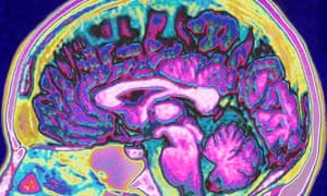 A scan of the human brain