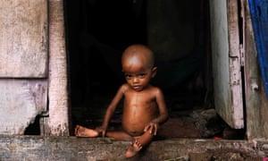malnourished indian child sits in doorway
