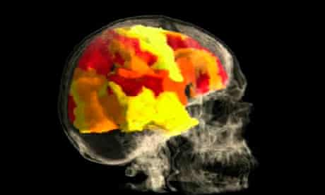 An image of the brain of Kayt Sukel, who volunteered to have an orgasm while inside an fMRI scanner