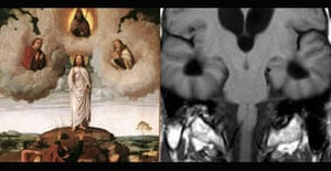 Detail from the Transfiguration of Christ and a section of the brain