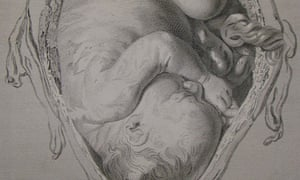 Observations in Midwifery image