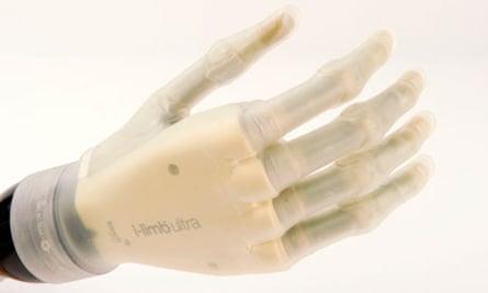 iLimb ultra prosthetic hand