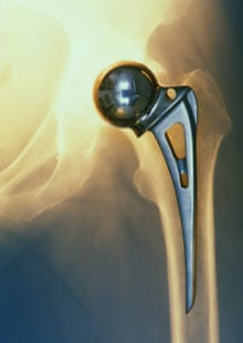 Prosthetic hip replacement on x-ray