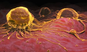 A microscopic conceptual visualization of breast cancer cells
