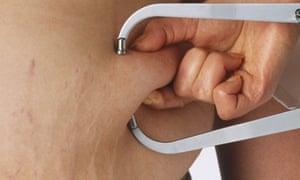 Doctor measures obesity