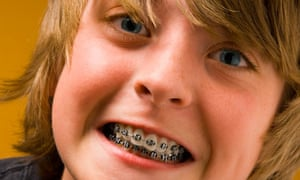 Health at a Glance 2009 reports that British 12-year-olds score well on tooth decay
