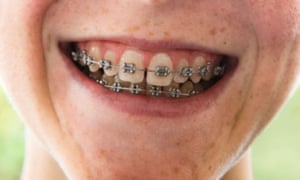How you smile affects people's first impression of you