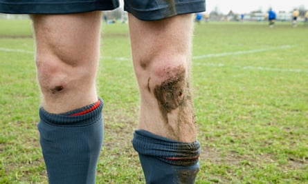 Footballer with cut and muddy knees