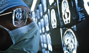 surgeon looking at brain scans