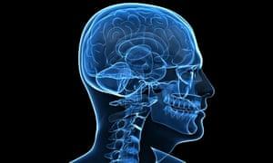x-ray of human brain