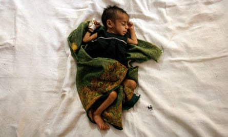 MDG1 baby malnourished child in India