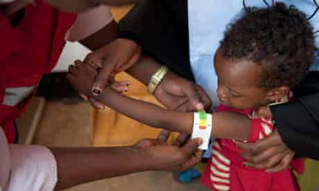 MDG : famine in the Horn of Africa : child arm girth is measured at Red Crescent clinic in Ethiopia