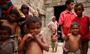 MDG : Yemen : Yemen to vaccinate all children against rotavirus ( GAVI )